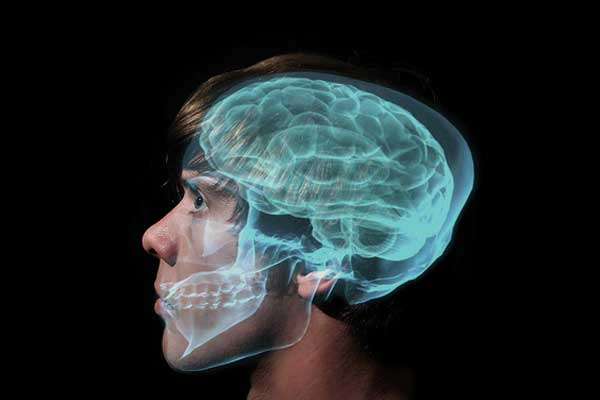 beyin onarımı